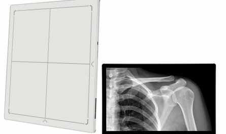 Digital Radiography Systems Market